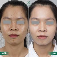 Top 7 Spa trị mụn hiệu quả nhất Quận Phú Nhuận, TP. HCM