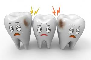 Top 9 Kem đánh răng đặc trị ngừa sâu răng hiệu quả nhất hiện nay